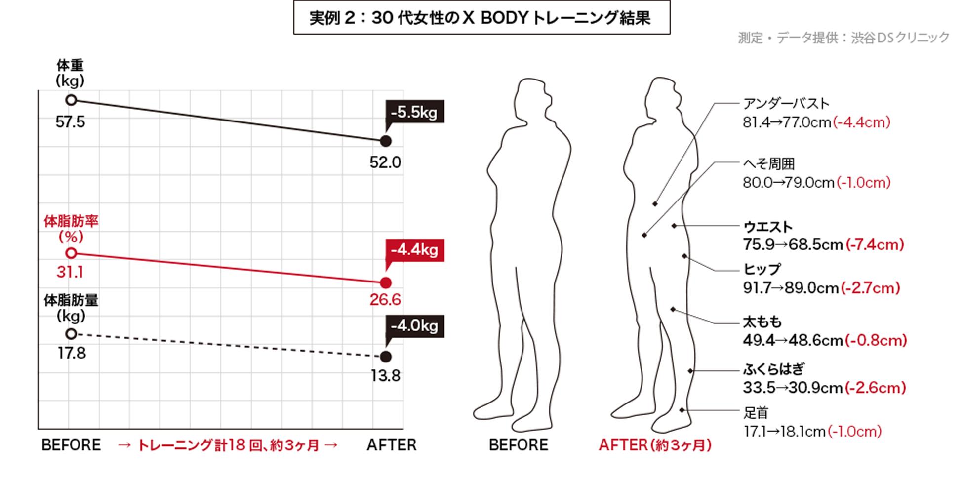 実例2:30代女性のX BODYトレーニング結果